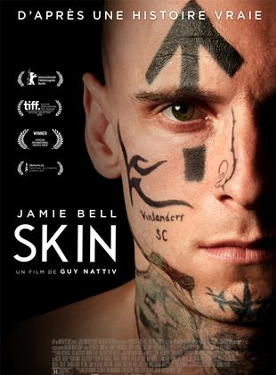 Bande-annonce Skin